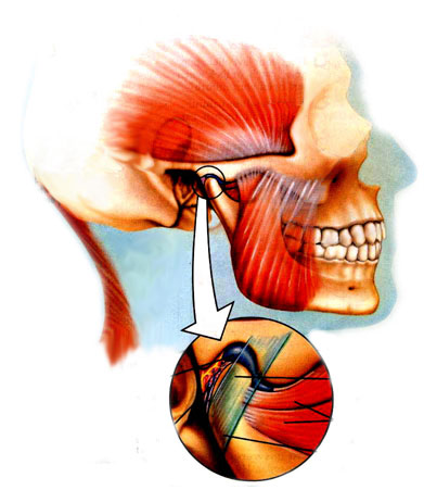 Denver Sleep Apnea Center -  What is TMJ/TMD?