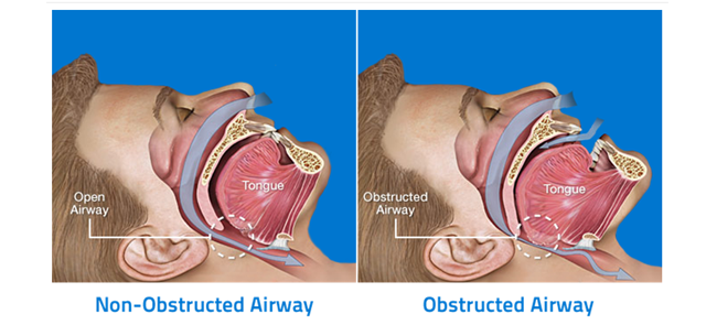 Denver Sleep Apnea Center - Sleep Apnea